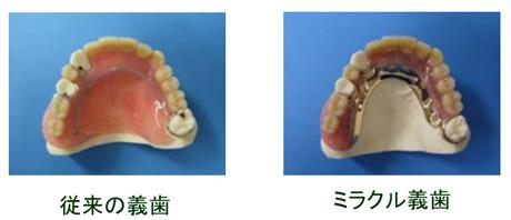 ミラクル義歯