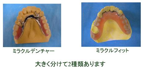 ミラクル義歯の種類